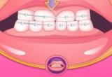 العاب طبيب اسنان تركيب تقويم